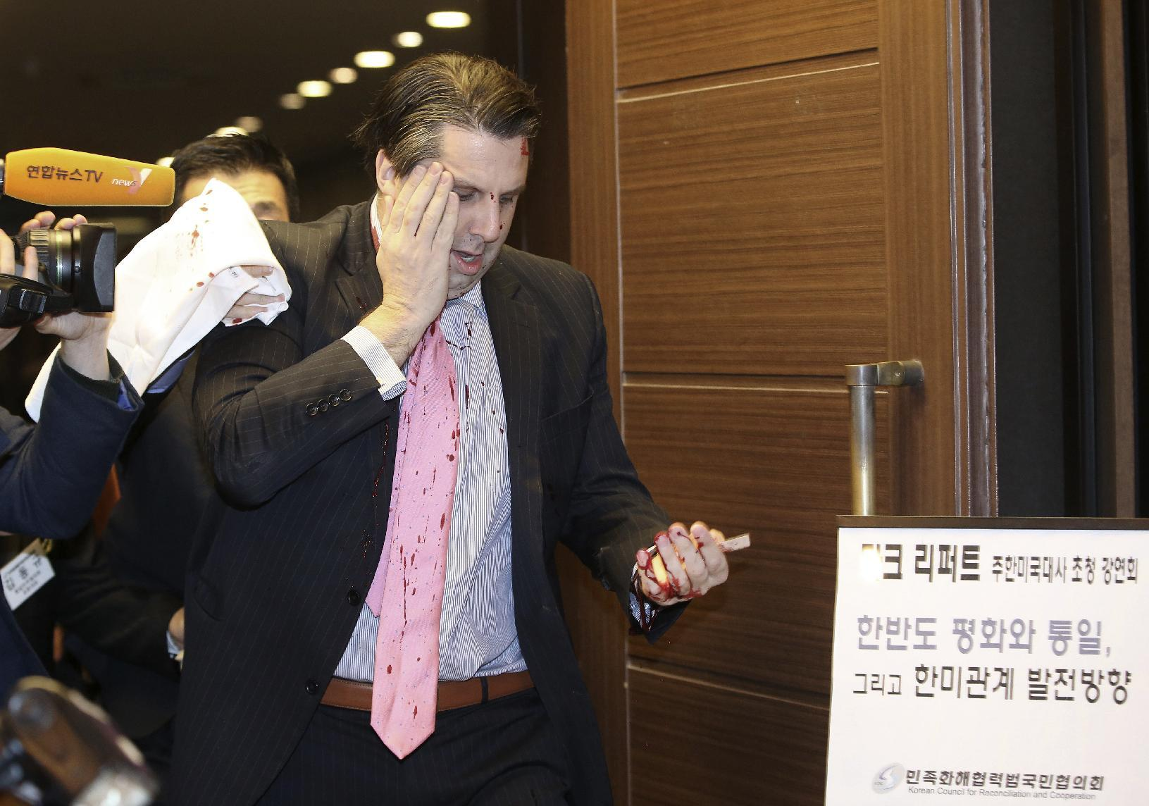 Security questioned in probe of attack on US envoy to Seoul