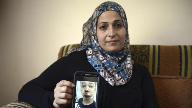 Suha Abu Khdeir, mother of 15-year-old Tariq Abu Khdeir, a U.S. citizen who goes to school in Tampa, Florida, sits in her home and shows a tablet with a photo of Tariq taken in a hospital after he was beaten and arrested by the Israeli police during clashes sparked by the murder Thursday of his cousin Mohammed Abu Khdeir, in Jerusalem, Saturday, July 5, 2014. Israeli police spokeswoman, said that Tariq Abu Khdeir had resisted arrest and attacked police officers. Tariq's father said he witnessed his son's arrest and insisted the boy was not involved in the violence. (AP Photo/Mahmoud Illean)