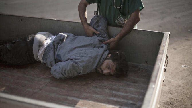 A severely wounded man arrives at Dar El Shifa hospital in Aleppo, Syria, Wednesday, Oct. 3, 2012. Three suicide bombers detonated cars packed with explosives in a government-controlled area of the battleground Syrian city of Aleppo on Wednesday, killing at least 34 people, leveling buildings and trapping survivors under the rubble, state TV said. More than 120 people were injured, the government said. (AP Photo / Manu Brabo)