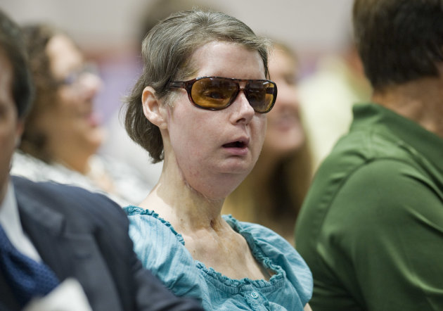 Charla Nash sits before a hearing at the Legislative Office Building in Hartford, Conn., Friday, Aug. 10, 2012. Nash who was mauled in a 2009 chimpanzee attack is attending a hearing to determine whether she may sue the state for $150 million in claimed damages. (AP Photo/Jessica Hill)
