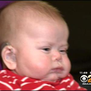 3-Month-Old Boy Hears Mother's Voice For The First Time With Help Of Hearing Aids