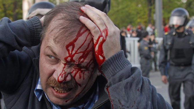A wounded opposition protester winces in pain during a rally in Moscow on Sunday, May 6, 2012. Riot police in Moscow have begun arresting protesters who were trying to reach the Kremlin in a demonstration on the eve of Vladimir Putin's inauguration as president. (AP Photo/Mikhail Metzel)