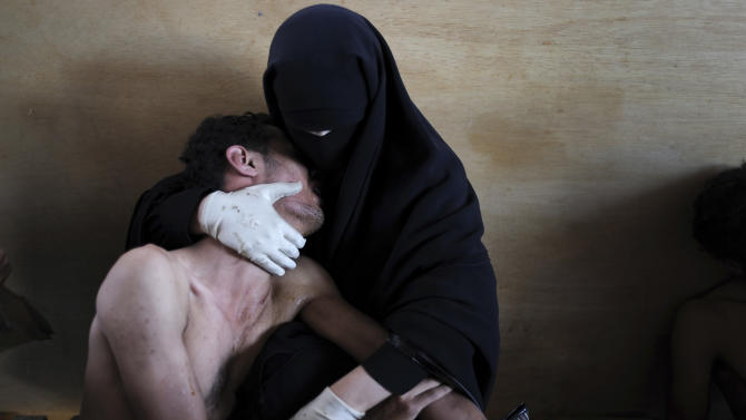 In this photo provided on Friday Feb. 10, 2012 by World Press Photo, the 2012 World Press Photo of the year by Samuel Aranda, Spain, for The New York Times, shows a woman holding a wounded relative during protests against president Saleh in Sanaa, Yemen, Oct. 15, 2011. (AP Photo/Samuel Aranda/New York Times)