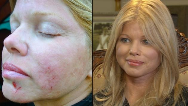 Donna D'Errico's injured face after her fall (left), Donna speaks to Access Hollywood (right) -- Donna D'Errico/Access Hollywood