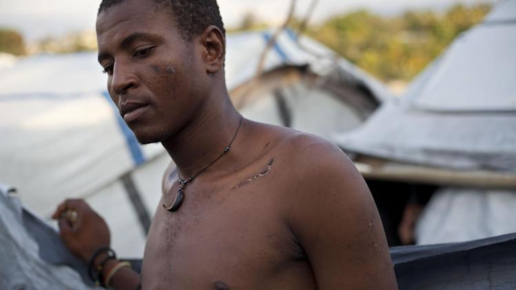 In this April 24, 2013 photo, Darlin Lexima shows a scar covering his collar bone which he says was inflicted by a police beating as he stands outside his home at Camp Acra in the Delmas district of Port-au-Prince, Haiti. Lexima, 21, was arrested by police early April 15 when he was walking home from a disco club, as residents at his camp were protesting a raid by motorcyclists who set fire to their homes.  The band of motorcyclists arrived to Camp Acra hours after attorney Reynold Georges came with a judge and a police officer and told the some 30,000 people who had lost their homes in the 2010 earthquake that they were squatting on his land and had to leave, witnesses said. If they didn't vacate, he said he'd have the place burned down and leveled by bulldozers. (AP Photo/Dieu Nalio Chery)