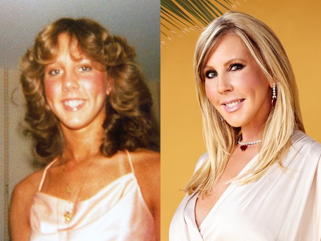 Vicki Gunvalson