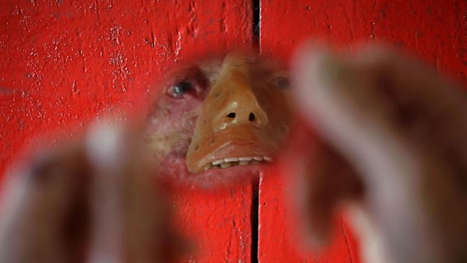 """In this March 3, 2014 photo, Djalma Antonio Jardim who has a rare inherited skin disease known as xeroderma pigmentosum, or """"XP,"""" looks in a a mirror at his home in the Araras community of Brazil's Goias state. In an effort to camouflage how the disease has eaten away the skin on his lips, nose, cheeks and eyes, Jardim wears a rudimentary orange-tinted mask, its stenciled-in right eyebrow not matching his bushy real one that remains. (AP Photo/Eraldo Peres)"""