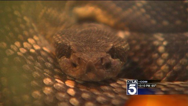 Girl Recovering After Being Bitten by Rattlesnake on Hiking Trail in La Canada Flintridge