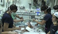 Conjoined Twins Separated In 20-Hour Op
