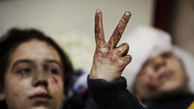 FILE - In this Saturday, March 10, 2012 file photo, Hana, 12, flashes the victory sign next to her sister Eva, 13, as they recover from severe injuries after the Syrian Army shelled their house in Idlib, north Syria. Syria's upwardly spiraling violence has resulted in the confirmed killings of almost 93,000 people, the United Nations' human rights office said Thursday but acknowledged the real number is likely to be far higher. (AP Photo/Rodrigo Abd, File)