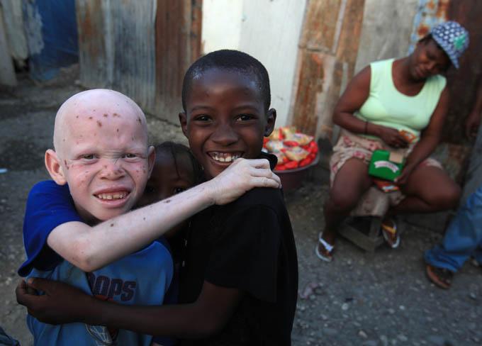 Las fotos del año 2010 Haiti-ninos-albino