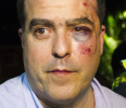 Venezuelan opposition lawmaker Borges arrives injured at a news conference after a fight in parliament in Caracas