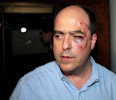 Opposition lawmaker Julio Borges arrives with a bruised face to his political party's headquarters before speaking to the press in Caracas, Venezuela, Tuesday, April 30, 2013. Members of Venezuela's ...