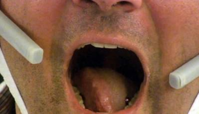 Paralyzed Patients Flick Tongue to Move