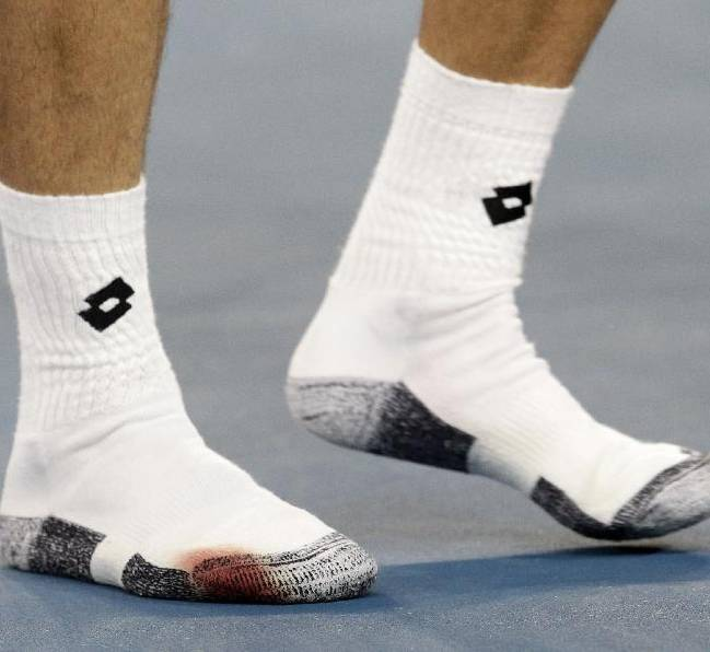 David Ferrer of Spain has a blood soaked sock after defeating Gilles Simon of France in their third round match at the Australian Open tennis championship in Melbourne, Australia, Saturday, Jan. 24, 2015