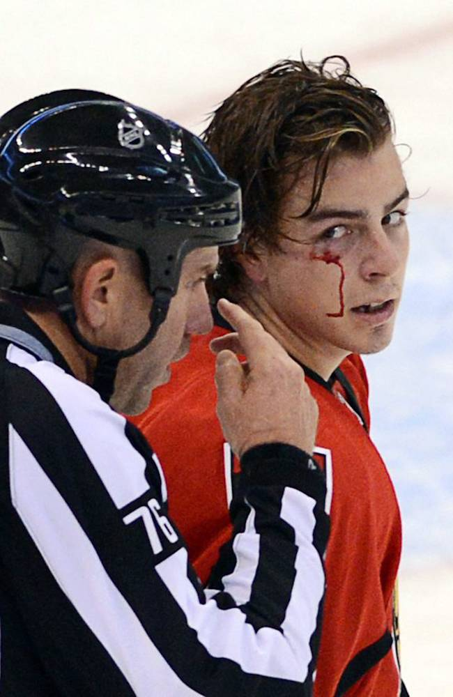 Ottawa Senators' Jean-Gabriel Pageau, right, is skated to the penalty box with a cut under his eye after a fight with the Toronto Maple Leafs' Nazem Kadri during a preseason NHL hockey game in Ottawa, Ontario on Thursday, Sept. 19, 2013