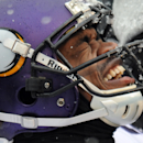 Peterson injury tops list in painful Vikings loss The Associated Press