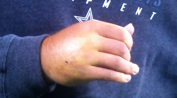 This is a picture of Tony Romo&#8217;s purple throwing hand