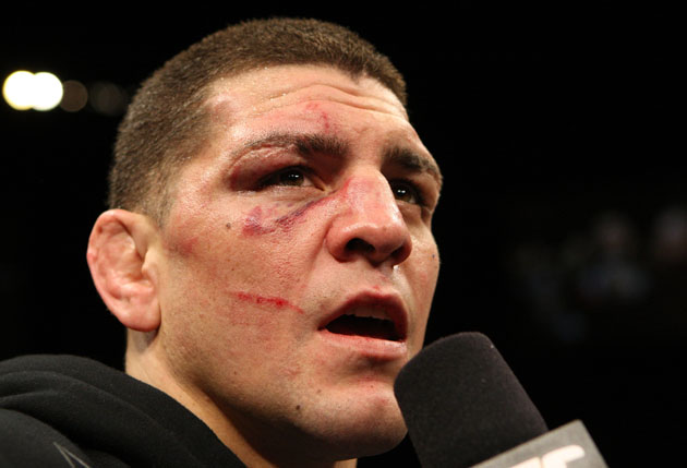 Nick Diaz's attorney doesn't take kindly to calling his client a liar