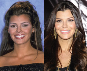 'Doritos Girl' Ali Landry shares scars from Super Bowl commercial