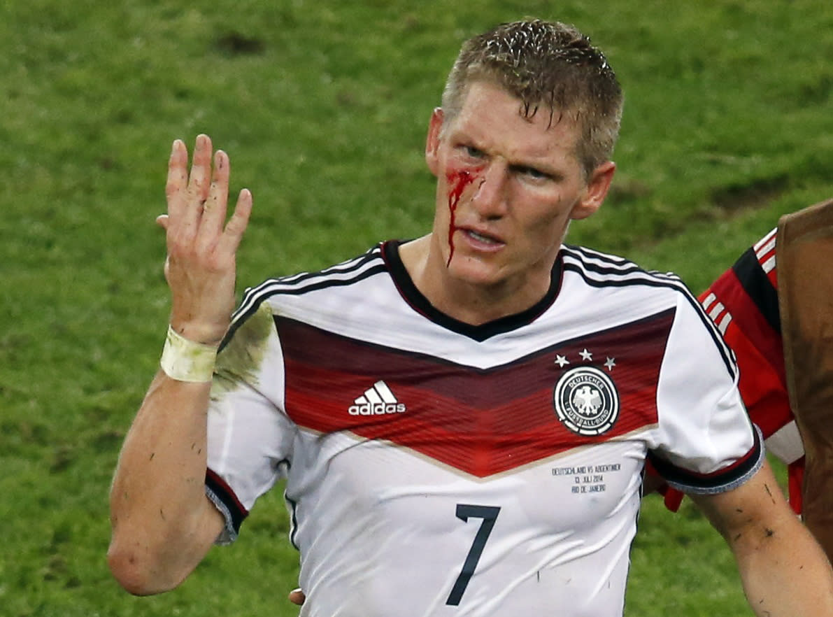 Germany's Bastian Schweinsteiger reacts as blood flows down his face after he was fouled during their 2014 World Cup final against Argentina at the Maracana stadium in Rio de Janeiro July 13, 2014. REUTERS/Paulo Whitaker (BRAZIL - Tags: SOCCER SPORT WORLD CUP)