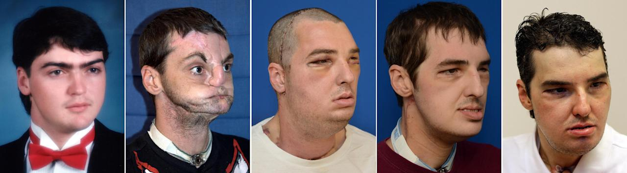 In a series of four photos provided by the University of Maryland Medical Center and a June 18, 2013 Associated Press photo, face transplant recipient Richard Norris, the recipient of the most extensive face transplant performed to date, is seen in a prom photo, from left to right, a photo taken before his face transplant, a photo made six days after the transplant and a photo made 114 days after the transplant. Norris received the transplant in a 36-hour operation in March 2012. It included the replacement of both jaws, teeth, tongue, and skin and underlying nerve and muscle tissue from scalp to neck. Norris was injured in a gun accident in 1997. (AP Photo/University of Maryland Medical Center and Pat Semansky)
