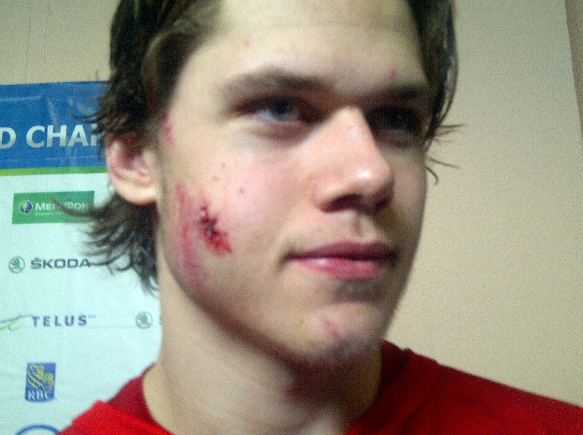 Tyler Wortherspoon shows off his scars from Monday's game against Russia. (Sunaya Sapurji)