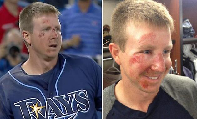 Here's Elliot Johnson's face the day after his ill-fated slide
