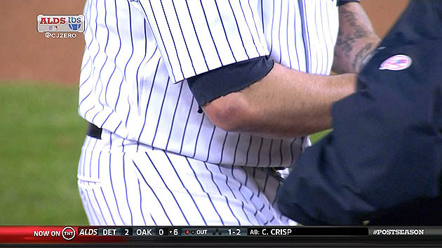 Joba Chamberlain leaves game after flying broken bat bruises el…