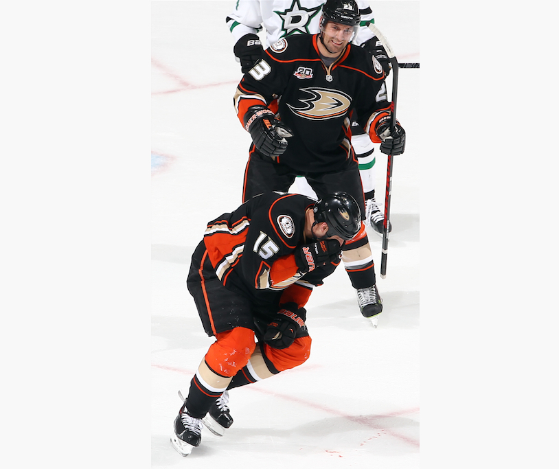 Ryan Getzlaf to play in Game 2 after facial laceration, 'numero…