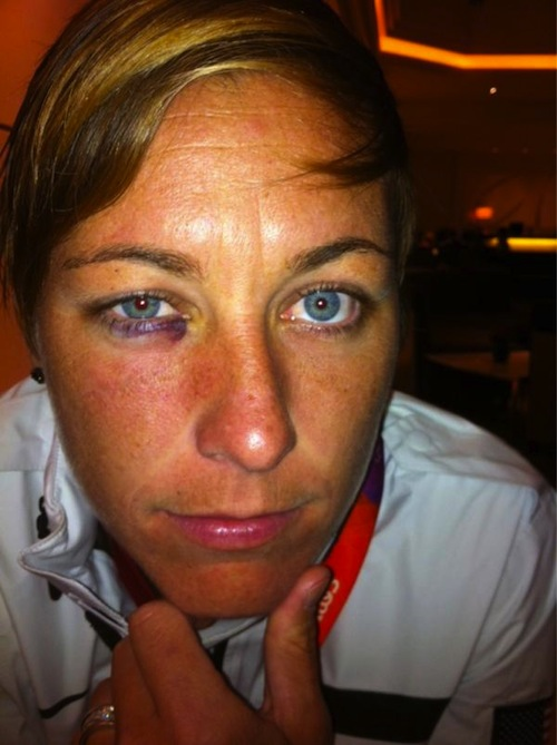 Abby wambach shows off her black eye after being punched in the face