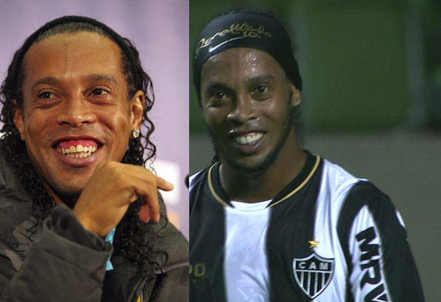 dinhoteeth Ronaldinho has had an operation to fix his teeth, talks to Playboy about losing virginity at 13