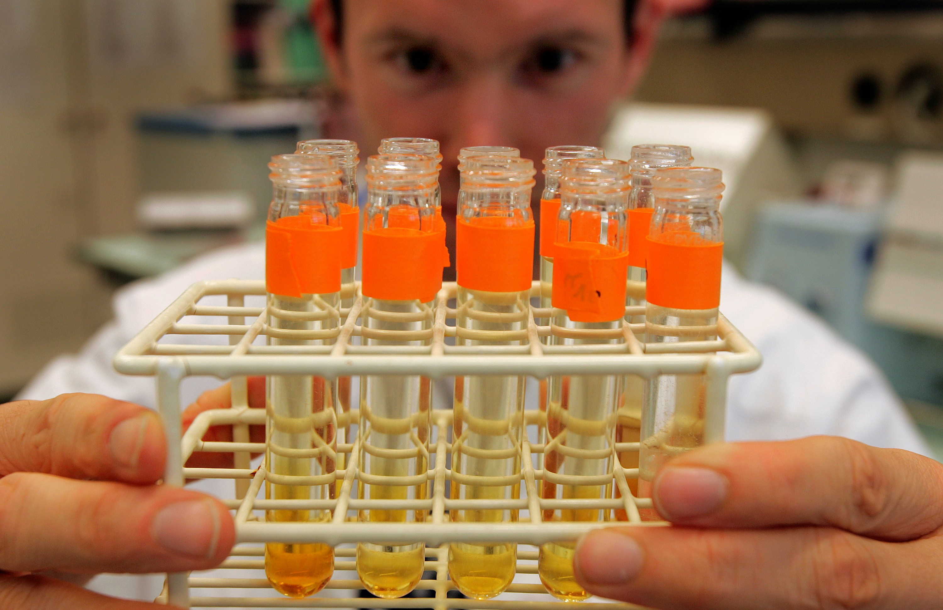 File photo of lab assistant looking at urine tests. (AP Photo/Keystone, Fabrice Coffrini)