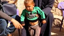 Polio Spreads in War-Torn Syria