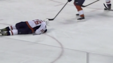 A Capitals player lost part of his ear after getting hit in the head by the puck