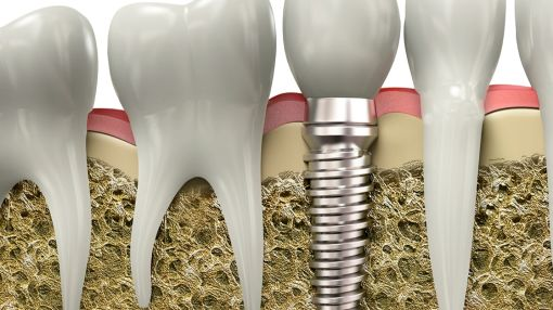New Dental Technology Now Available To Public