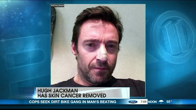Cancer Scare For Wolverine? Jackman Has Carcinoma Removed