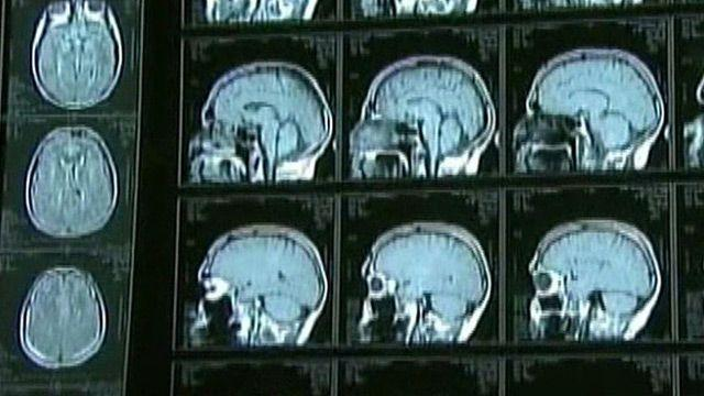Brain-eating parasite: Are you at risk?
