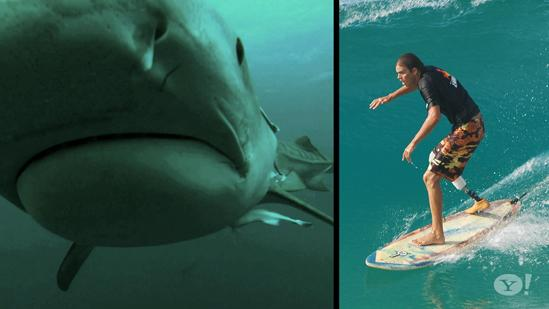 Shark Attack Survivor Fights To Save Sharks