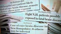 Dirty health equipment blamed for deadly brain disease exposure