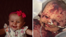 Thousands raised for baby girl with 'worst case of meningitis in decades' after her fourth limb amputation
